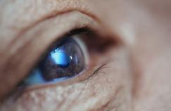 La cataracte ne concerne pas seulement les seniors