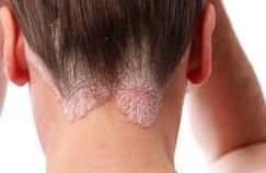 Peut-on se débarasser du psoriasis ?