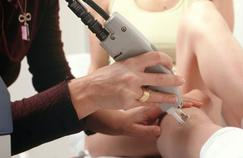 Avantages et inconvénients de l'épilation laser