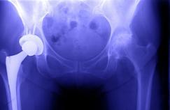 Les risques mesurés des prothèses de hanche en métal