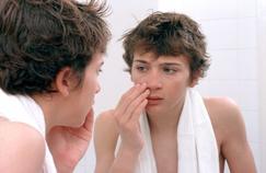 Cinq millions de Français concernés par l'acné