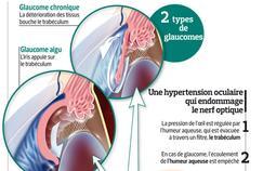 De nouvelles pistes pour traiter le glaucome