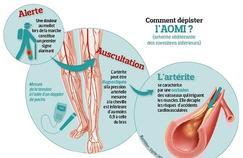 L'artérite n'est pas assez diagnostiquée