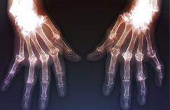 Polyarthrite rhumatoïde: à repérer dès les premiers signes
