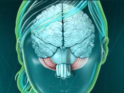 Cervelet