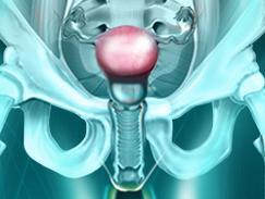 Corps de l'utérus