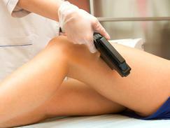 Lasers dermabrasion peeling