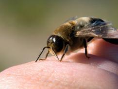 Piqûre de guêpe/abeille