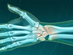 Douleur du poignet