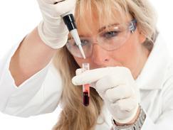Toxoplasmose Test