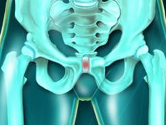 Symphyse pubienne