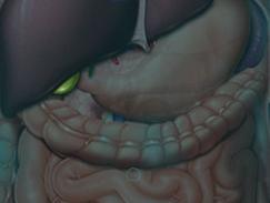 Cancers de la vésicule et des voies biliaires