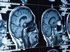 IRM hypophysaire