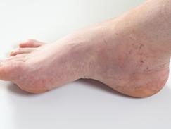 Ulcères variqueux