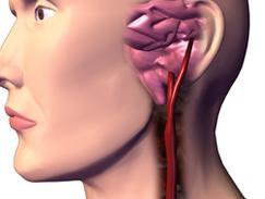 Sténose carotidienne athéromateuse