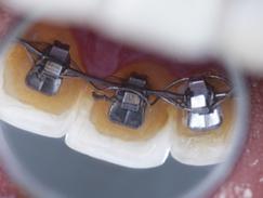 Orthodontie chez les enfants