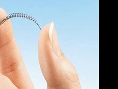 Cette image représente une forme d'implant en ressort