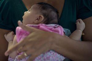 Le Zika est suspecté de provoquer une macrocéphalie chez le foetus de certaines femmes infectées pendant leur grossesse.