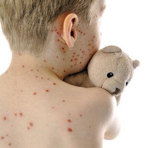 Enfant atteint de rougeole.