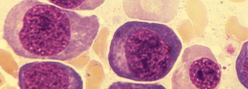Ces maladies à débusquer avant un cancer de l'estomac