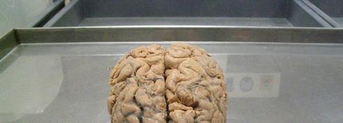 La Belgique reçoit une collection rarissime de cerveaux