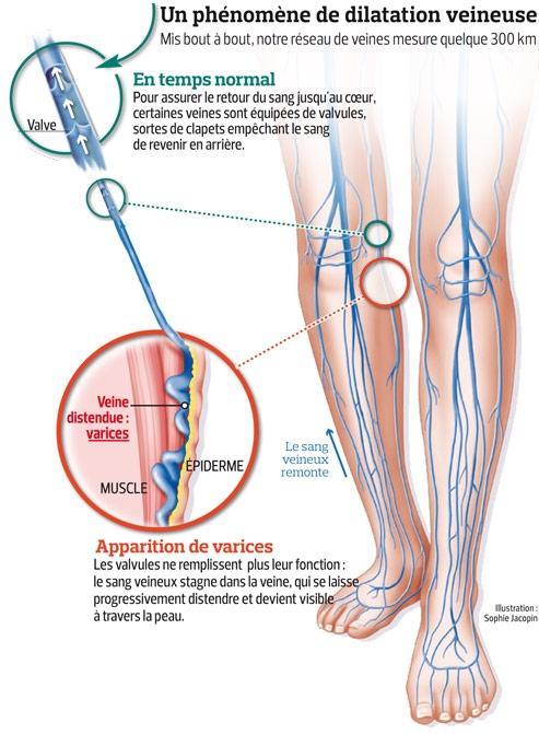 La thrombose de tous lestomac