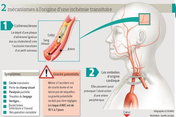 Infographie présentant les causes de l'AVC à l'aide d'un schéma du cerveau