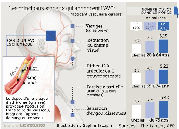 Cette infographie présente les signes précurseurs de l'AVC
