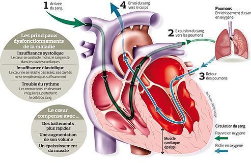 Cette infographie présente les formes de l'insuffisance cardiaque