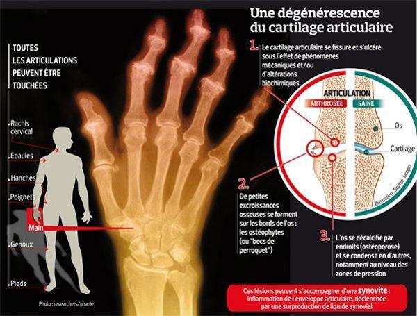 Cette infographie illustre l'arthrose de la main