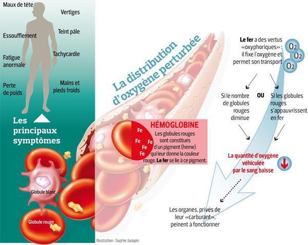 Ce schéma représente les complications liées à l'anémie