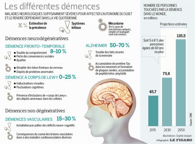 Cette infographie répertorie les différentes démences et leur répartition