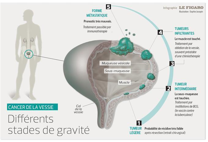 Cette infographie explique les stades de gravité