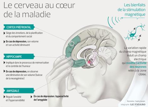 Ce schéma représente le cerveau avec les stimulations magnétiques qu'il reçoit