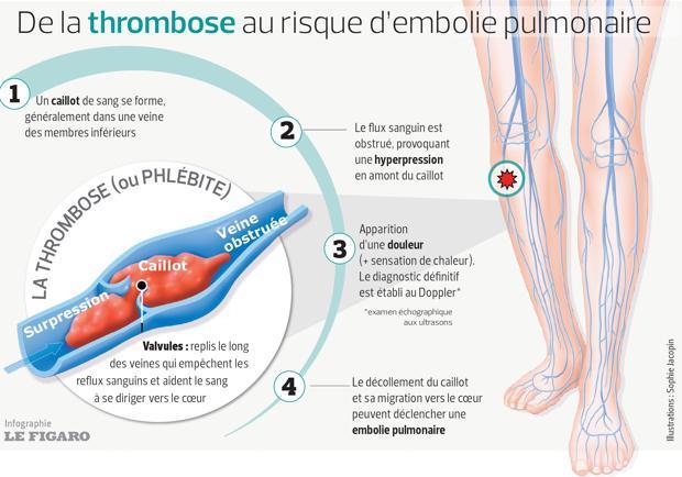 Ce schéma détaille les étapes menant à l'embolie