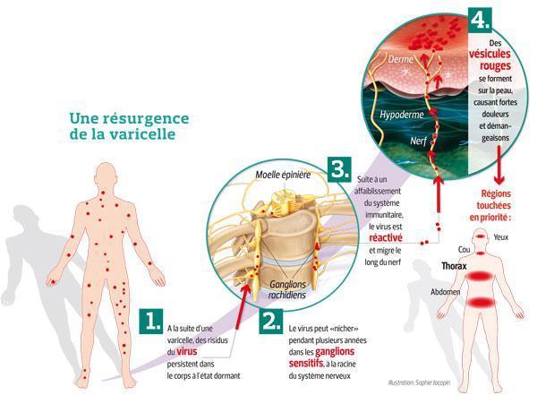 Ce schéma montre que la varicelle peut resurgir sous la forme d'un zona