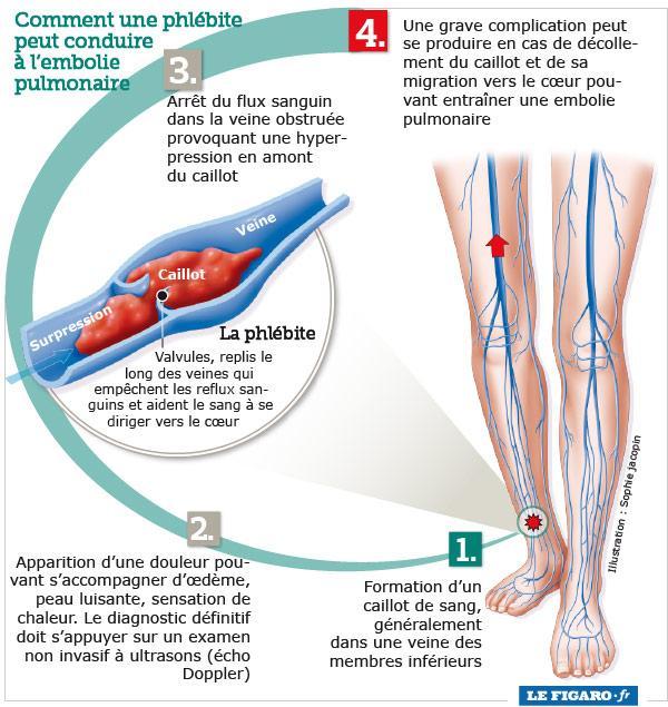 prise de sang pour phlébite