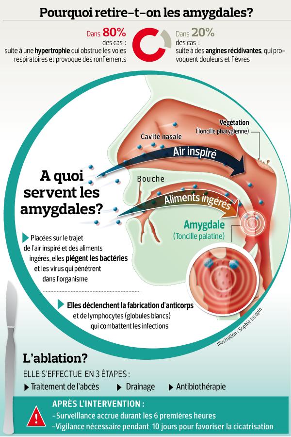 phlegmon amygdalien recommandations