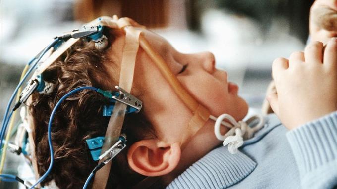 Enfant épileptique passant un électroencéphalogramme.