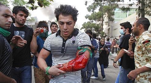 Un manifestant blessé, le 15 juin dernier, à Téhéran. Depuis le début de la contestation, les miliciens demandent aux hôpitaux de leur fournir la liste des blessés admis.