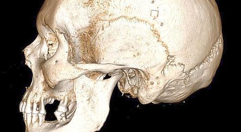 Les logiciels de Useful Progress permettentde voir le crâneà très haute résolutionsous les bandelelettes.