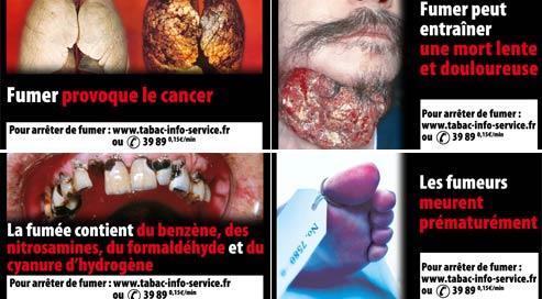 Exemples de visuels figurant au verso des paquets de cigarette.