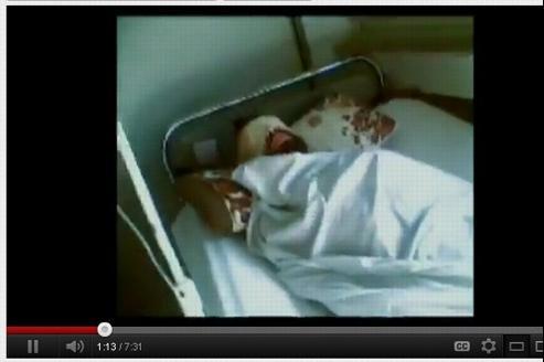 Des blessés syriens torturés dans un hôpital de Homs