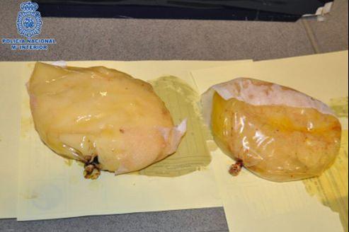 Les deux faux implants mammaires contenaient au total 1,377 kg de cocaïne.