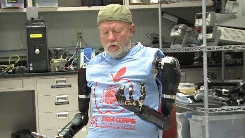 Un am ricain quip de deux bras bioniques quand la machine devient le futu - Machine a laver du futur ...