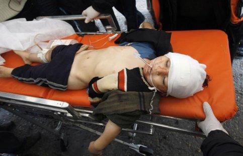La première victime de l'incursion israélienne est un enfant (ici, un jeune Gazaoui blessé le lendemain). Un jeune Palestinien est tué et onze autres blessés par un tir d'obus de char israélien dans le quartier de Zeïtoun, à Gaza-ville.