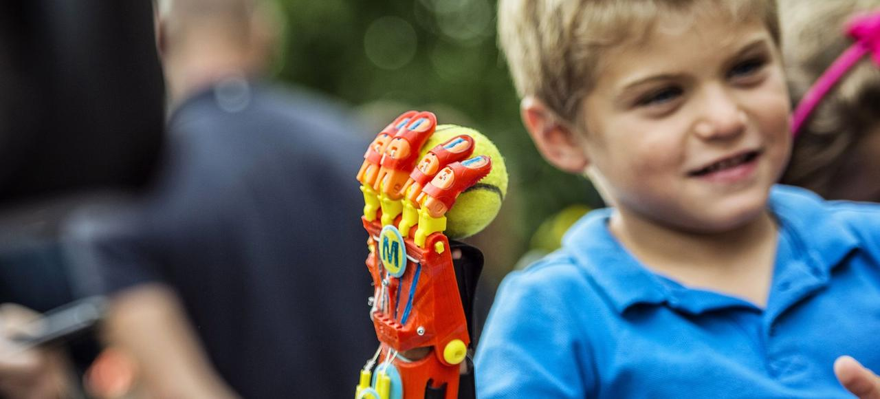 Maxence, né avec une malformation de la main droite, s'est vu offrir une prothèse, réalisée avec une imprimante 3D, par l'ASSEDEA, une association qui vient en aide aux familles d'enfants nés avec une malformation de membres.