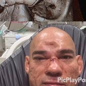 Le combattant MMA qui a été «capturé» comme un pokéball souffre d'une fracture du crâne