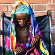 Saïda Baghili, le visage décharné de la famine au Yémen