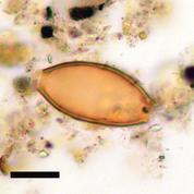 On a trouvé de quels vers parasites Hippocrate parlait